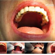 Mise_en_charge_imm%c3%a9diate_-_chirurgie_guid%c3%a9e_19_vtj2hy