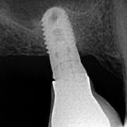 Radio_implant_1_brr2ll