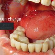 Mise_en_charge_imm%c3%a9diate_positdental003_xixru6