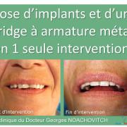 Pose_d_implants_et_d_un_bridge_%c3%a0_armature_m%c3%a9tal_en_1_seule_intervention_g.noachovitch-positdental-001_otu1kb