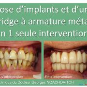 Pose_d_implants_et_d_un_bridge_%c3%a0_armature_m%c3%a9tal_en_1_seule_intervention_g.noachovitch-positdental-002_tsin4j