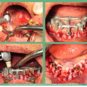 Pose_d_implants_et_d_un_bridge_%c3%a0_armature_m%c3%a9tal_en_1_seule_intervention_g.noachovitch-positdental-018_wgws7q