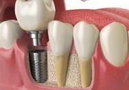 Zahnimplantate können fest und dauerhaft im Kiefer verankert werden. © Maksym Yemelyanov - stock.adobe.com