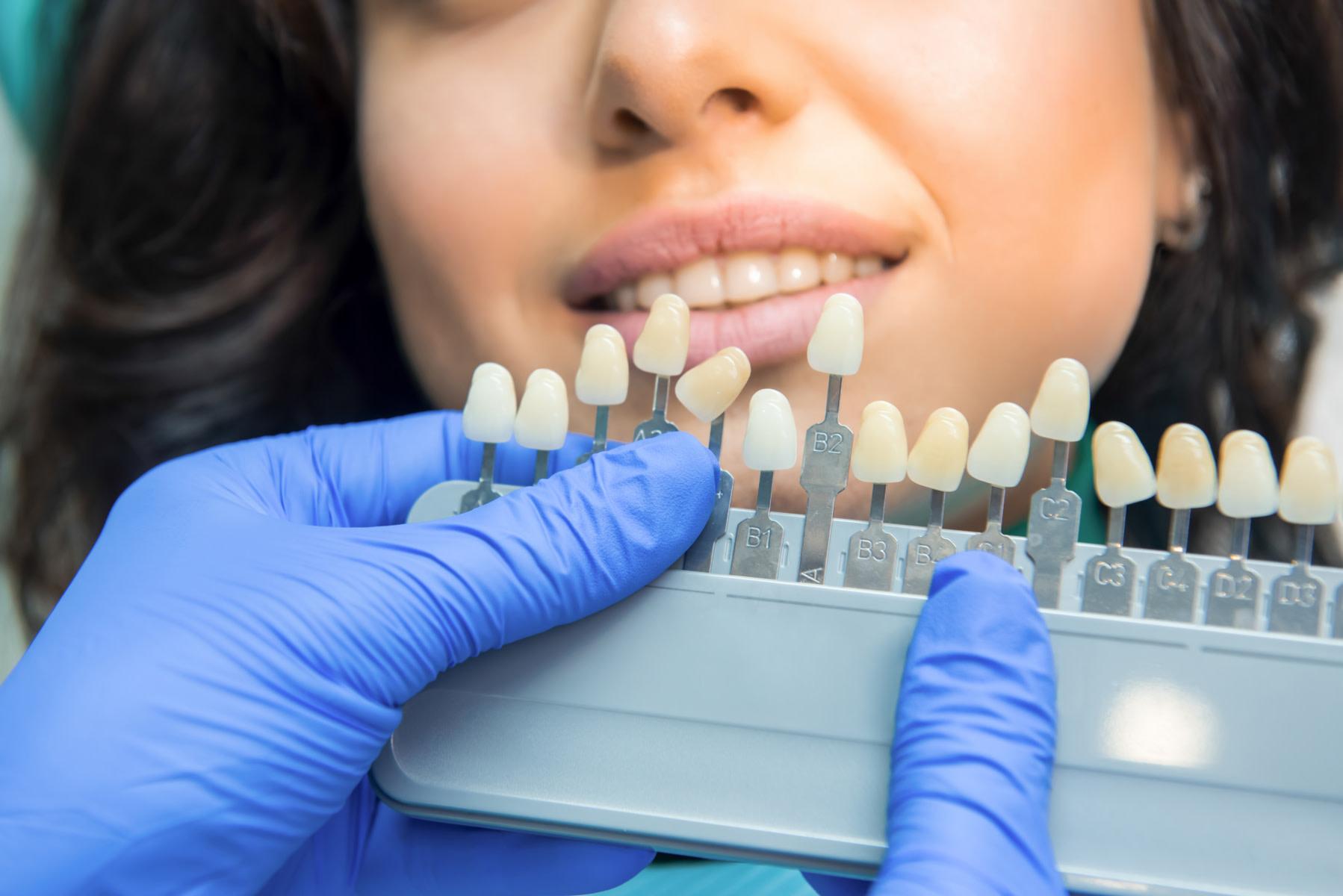 Eine Farbreihe hilft beim Bestimmen der Zahnfarbe - © DenisProduction.com stock.adobe.com