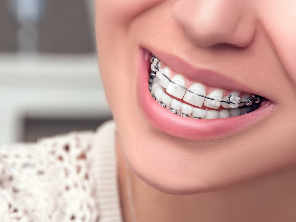 orthodontie adolescent 2