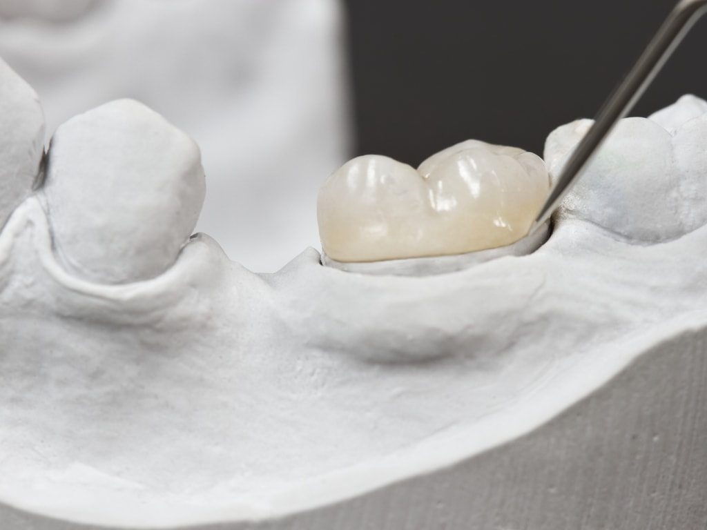 essai couronne dentaire sur moulage