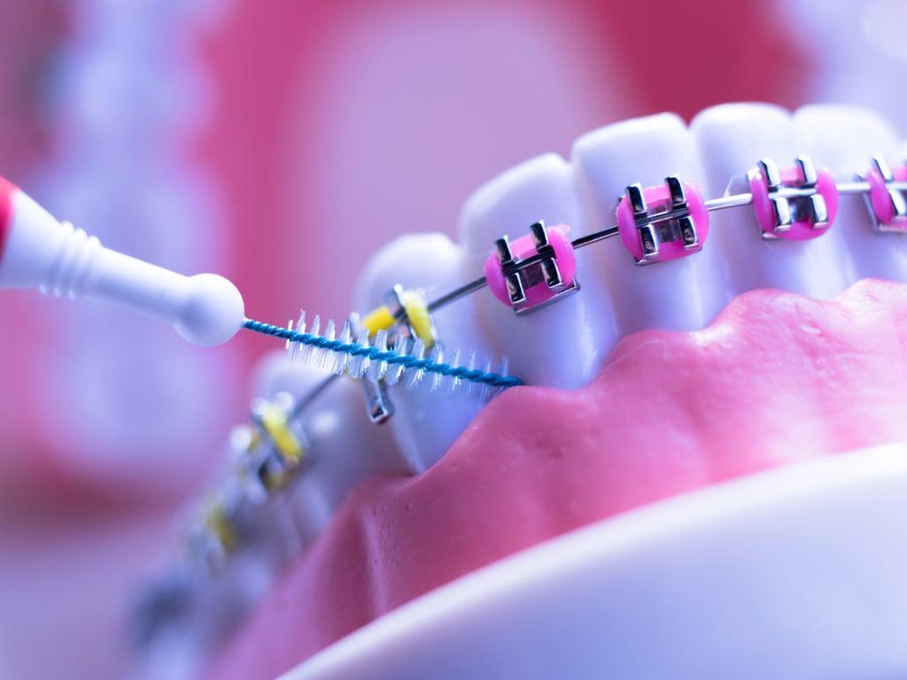 hygiene dentaire appareil