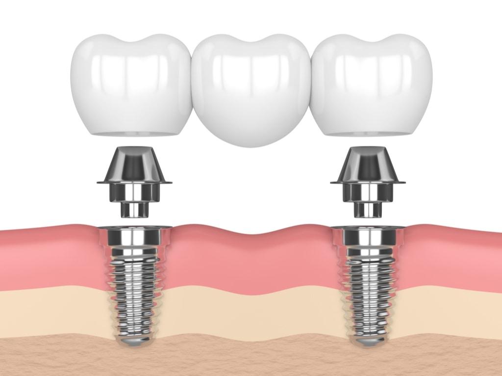 bridge dentaire sur implants
