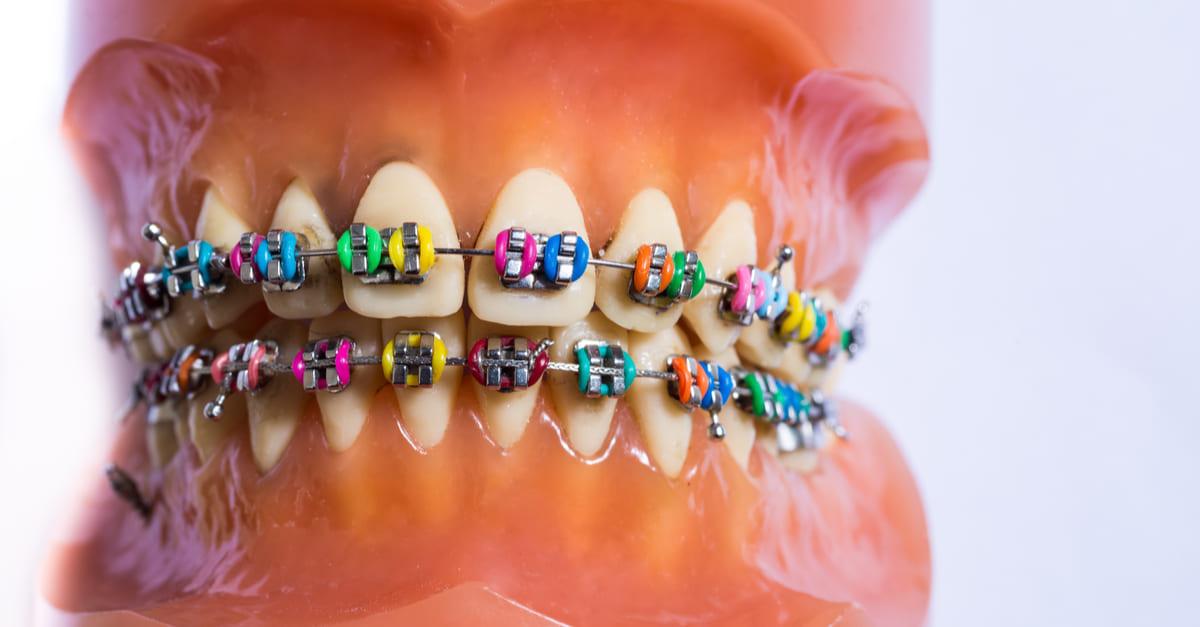 machoir plastique orthodontie