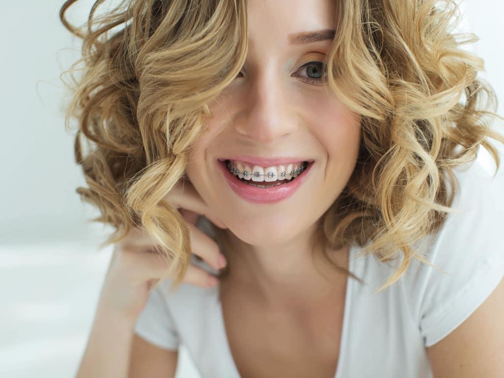 orthodontie adulte 2