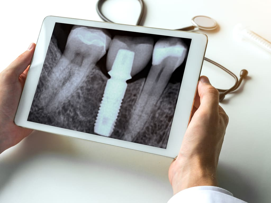 implant dentaire radio