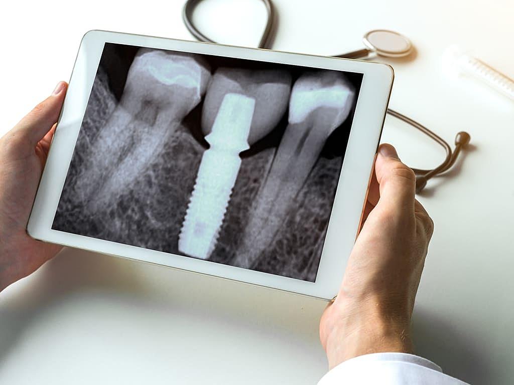 implant_dentaire_radio