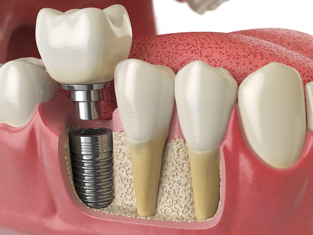 implant_dentaire_maquette