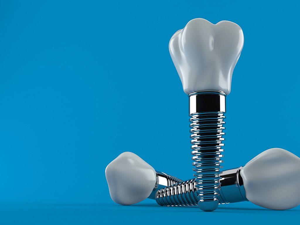 implants_dentaires_sur_fond_bleu