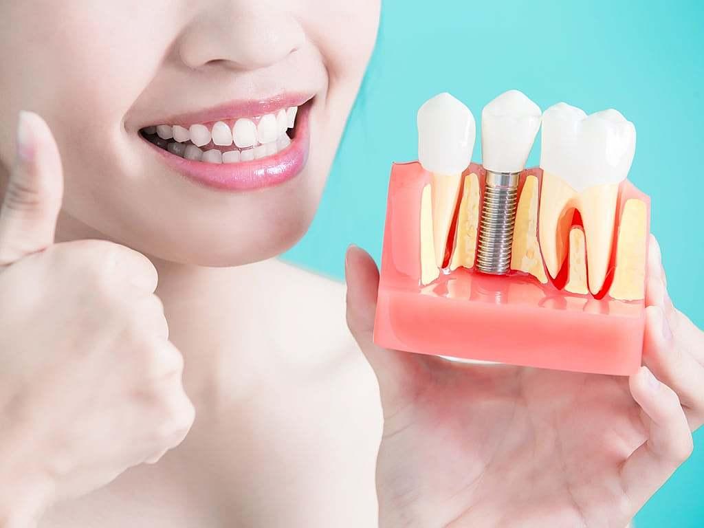 femme_satisfaite_de_son_implant_dentaire