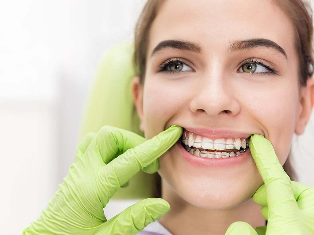 femme_avec_appareil_dentaire_et_mains_de_dentiste_avec_gants_verts