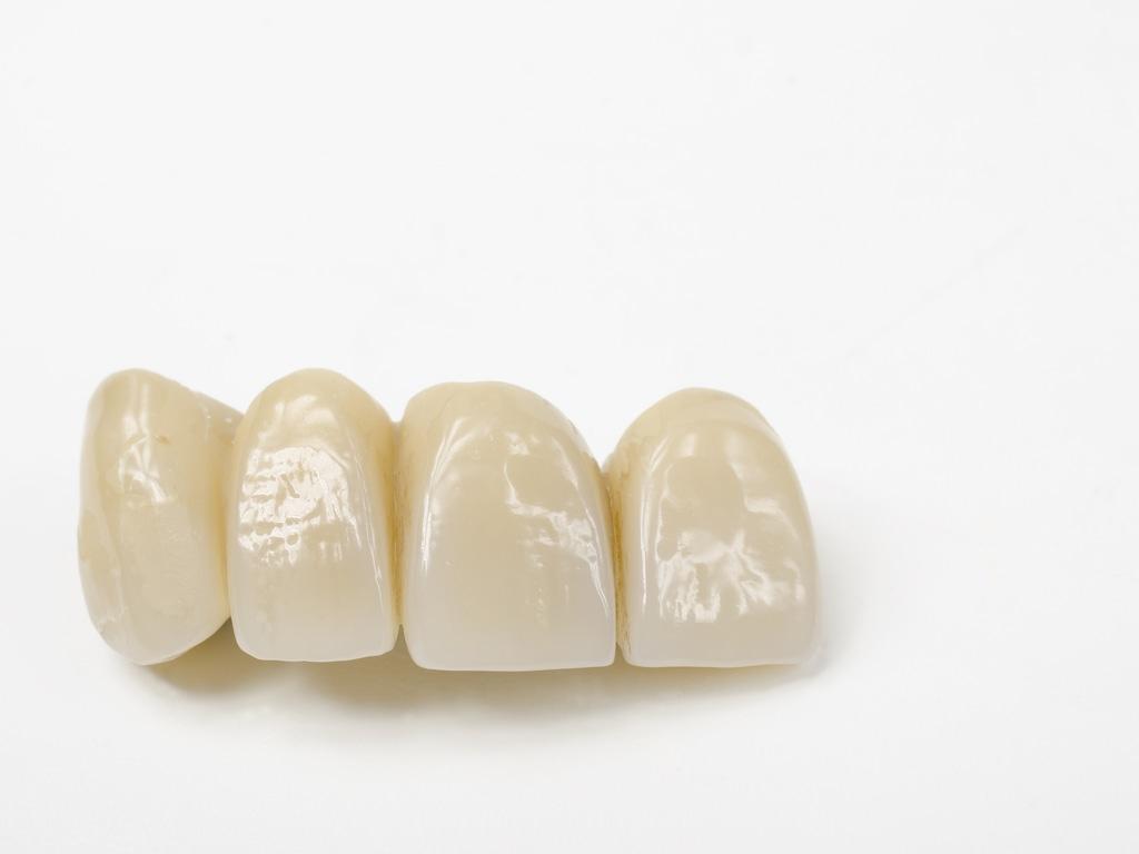 prothese dentaire sur fond blanc