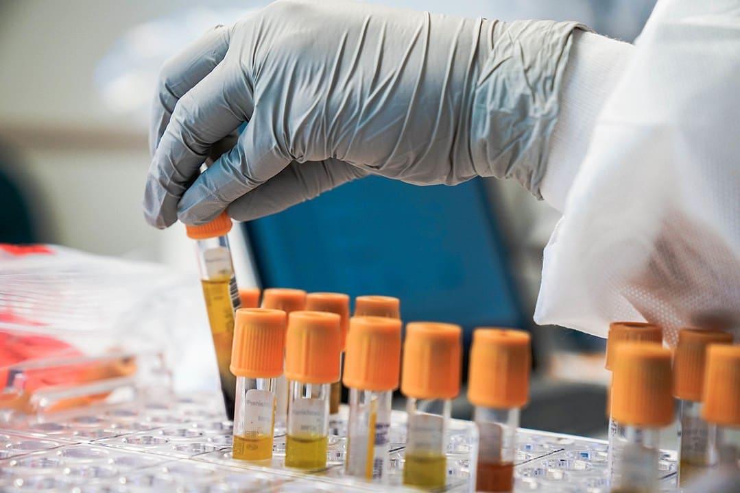 Test sierologico e personale scolastico: i primi dati