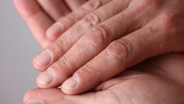 4. Nail Abnormalities