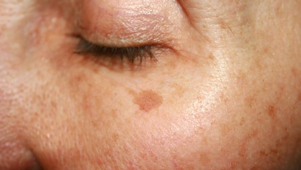 Basal cell carcinomas may look like scarring