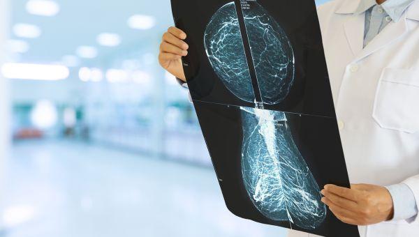 MYTH: Callbacks mean you have cancer