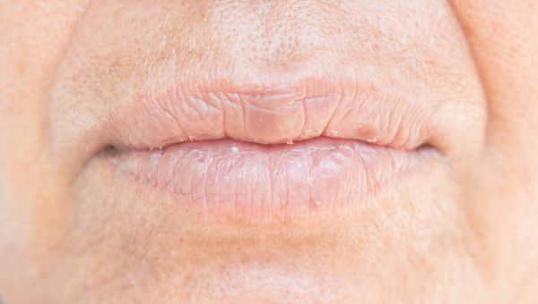 Where to Check: Lips