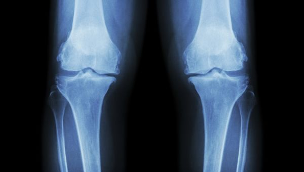 Is This Common Knee Surgery Effective?