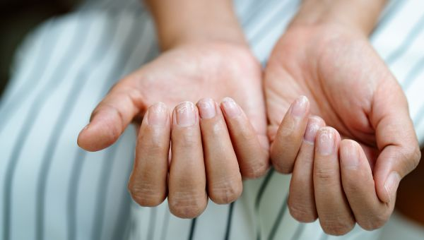 Healthy Hand and Foot Care Tips for Psoriatic Arthritis