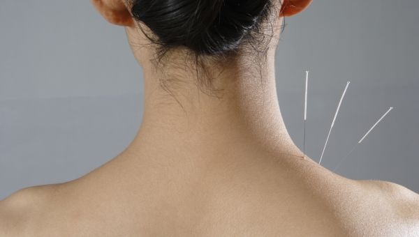 The Power of Acupuncture